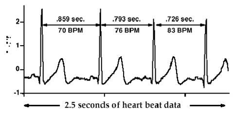 HRV R-R intervals