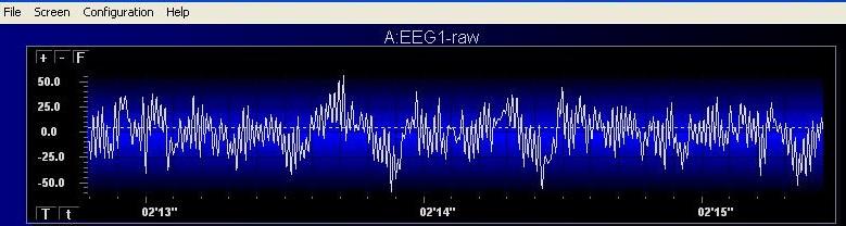 Raw EEG